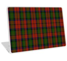 02414 Dickie Tartan  Laptop Skin
