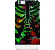 Psychadelic Ribs iPhone Case/Skin