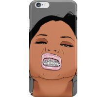 Braceface iPhone Case/Skin