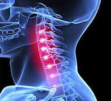 Chiropractor Thousand Oaks by globalsquaressq