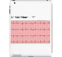 Standard 12-Lead ECG iPad Case/Skin