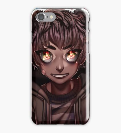 RS Rigby iPhone Case/Skin