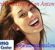 Famous Dentist San Antonio - Expert Endodontics - Teeth Whitening by jonesrobert