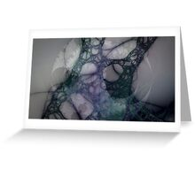 turquoise lingery Greeting Card