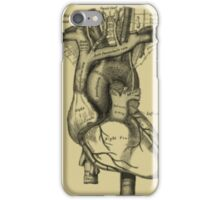 Vintage Anatomical Heart iPhone Case/Skin