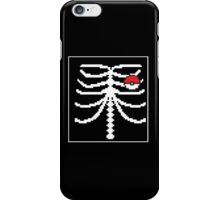 Pokemon / X-Ray  iPhone Case/Skin