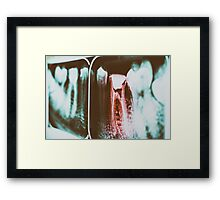 Pain Of Tooth Decay On Teeth X-Ray Framed Print