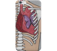 deadly beauty iPhone Case/Skin