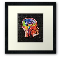 Neuropathology Framed Print