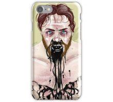 Bruce Robertson iPhone Case/Skin