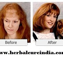 Way to Restore Damaged Hair and your life by robinwillson13