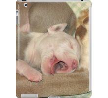 Say Ahhhhhh ~ iPad Case/Skin