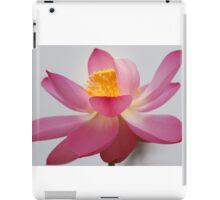 Stunning Beauty iPad Case/Skin