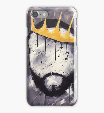 Naturally King iPhone Case/Skin