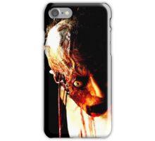 Aneurysm iPhone Case/Skin