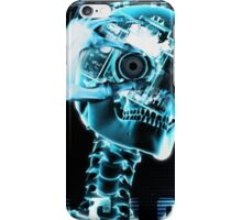 Death Ray. iPhone Case/Skin