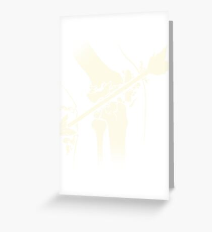 Arrow Into The Knee Greeting Card