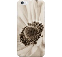 A Focus On The Details iPhone Case/Skin