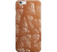 Skin Texture iPhone Case/Skin
