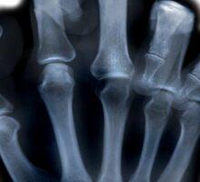 X-ray Sticker