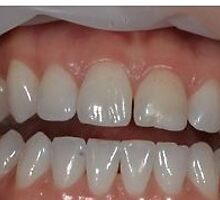 Las Vegas Cosmetic Dentistry Treatment Services by KaileyAbril