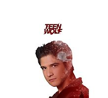 Scott McCall Double Exposure by yayaha