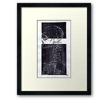 XRay Framed Print