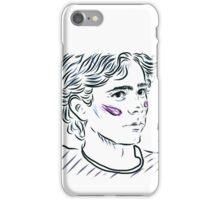 Isak (Skam) iPhone Case/Skin