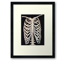 THE CAGE (Phoney) Framed Print