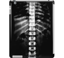 X-ray iPad Case/Skin
