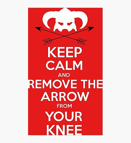 Keep calm and remove the arrow from your knee Photographic Print