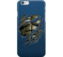 Grey muscle chest in Blue teal ripped torn tee iPhone Case/Skin