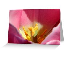Garden Work-Tulip Macro     ^      Greeting Card