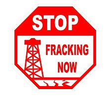 STOP FRACKING NOW by James Chetwald Mattson