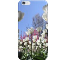 white beauties iPhone Case/Skin