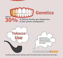 Causes of Periodontal Disease by Dentist Saratoga