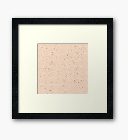 Skin Texture Pale With Lots of Freckles Framed Print