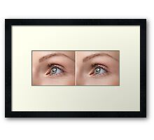 Womans Eye with and without Wrinkles art photo print Framed Print