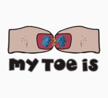 My-Toe-Is by CellDivisionLab