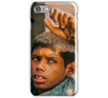 Intellectually disabled boy and his monkey, India iPhone Case/Skin