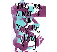 Scars/Rescue Story Photographic Print