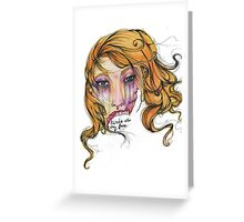 Birds Ate My Face Greeting Card