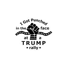 I got punched in the face at a Trump rally Photographic Print