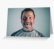 Happy Man with Black Eye and Missing Teeth Greeting Card