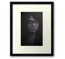 Scar Framed Print