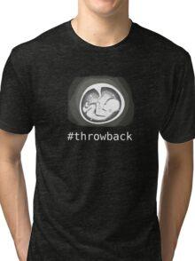 Throwback ultrasound Tri-blend T-Shirt