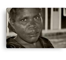 War victim Southern Congo II Canvas Print