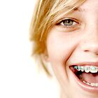 A smile with braces by focusonu