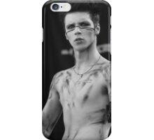 Andy Biersack iPhone Case/Skin