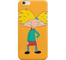 Arnold iPhone Case/Skin